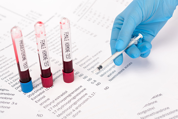 Should I choose natural progesterone or synthetic progestin?